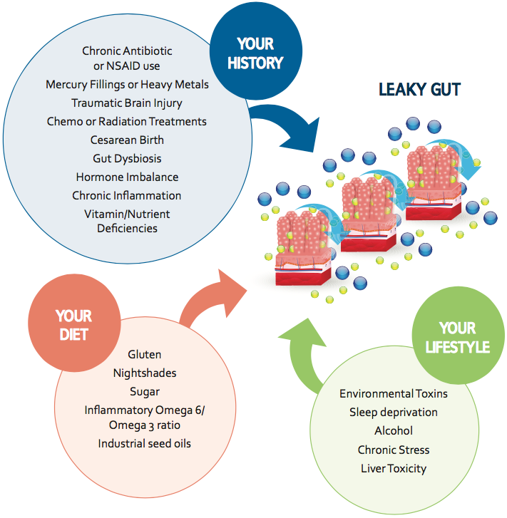 Solving Leaky Gut Triggers Map