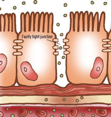 Leaky Gut Syndrome Close Up