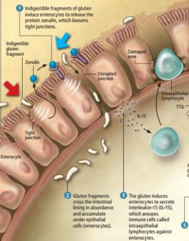Celiac-Disease-Intraepithelial-lymphocytes