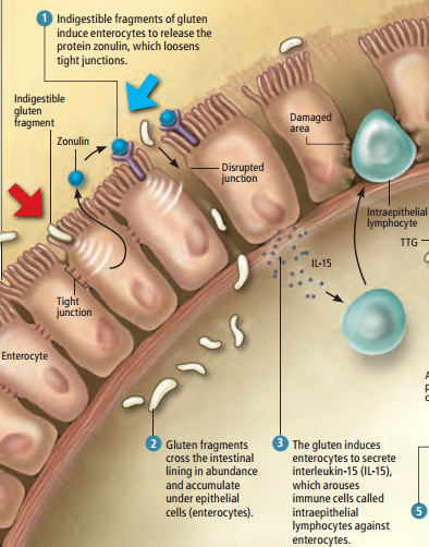 Celiac-Disease-Intraepithelial-lymphocytes