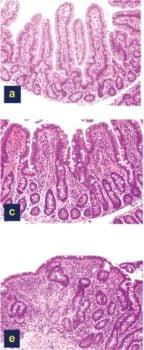 Celiac-Disease-Damage