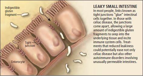 Celiac-Disease-Leaky-Gut