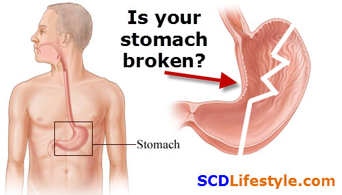 broken-stomach