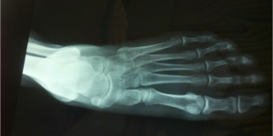 Scleroderma diagnostic tools